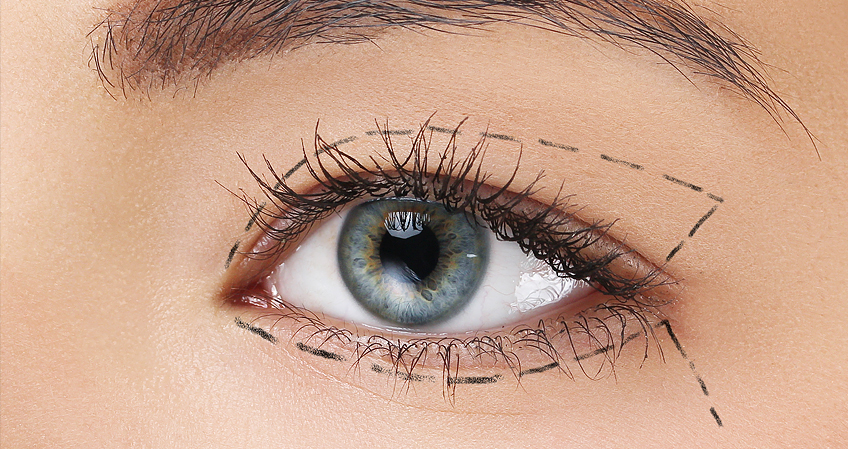 Cirurgia-de-Plastica-Ocular