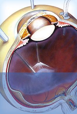 Cirurgia de